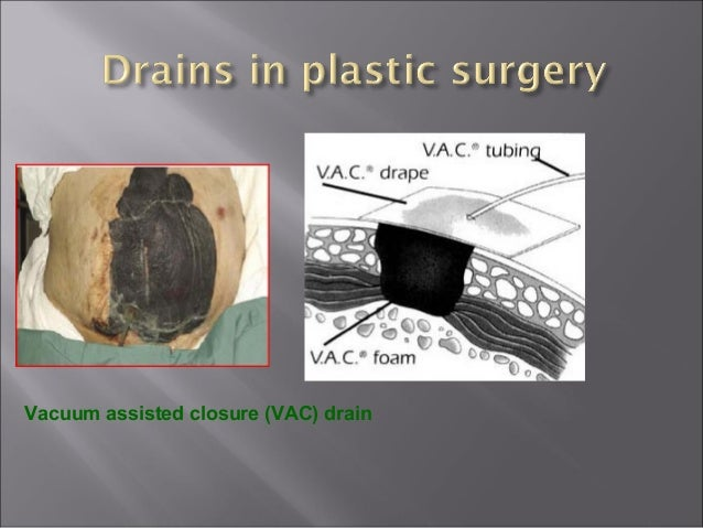 Use of drains in gastrointestinal surgery