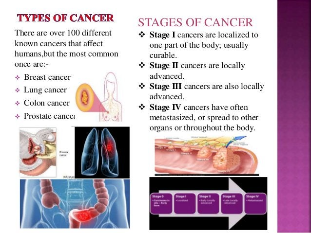 There are over 100 different known cancers that affect humans,but the most common once are:-  Breast cancer  Lung cancer...