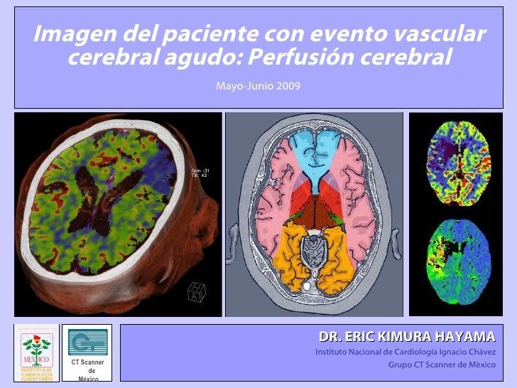 Imagen del paciente con evento vascular cerebral agudo: Perfusión cerebral Mayo-Junio 2009 DR. ERIC KIMURA HAYAMA   Instit...