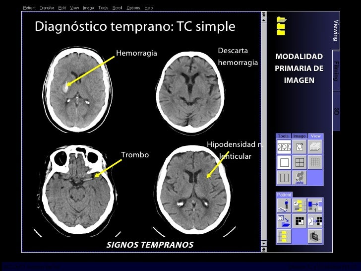 Diagnóstico temprano: TC simple SIGNOS TEMPRANOS Trombo Hipodensidad n. lenticular Hemorragia Descarta hemorragia MODALIDA...