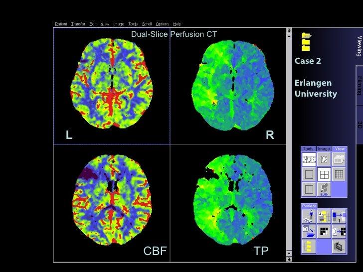 Case 2 Erlangen University L R Dual-Slice Perfusion CT CBF TP