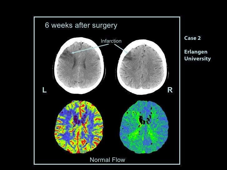 Case 2 Erlangen University 6 weeks after surgery Normal Flow L R Infarction