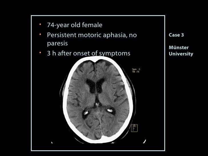 <ul><li>74 -year old female </li></ul><ul><li>Persistent motoric aphasia, no paresis </li></ul><ul><li>3 h after onset of ...