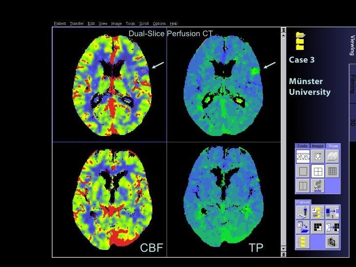 Case 3 Münster University CBF TP Dual-Slice Perfusion CT