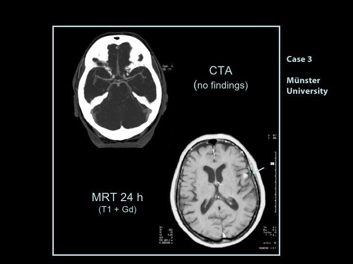MRT 24 h (T1 + Gd) CTA ( no findings) Case 3 Münster University