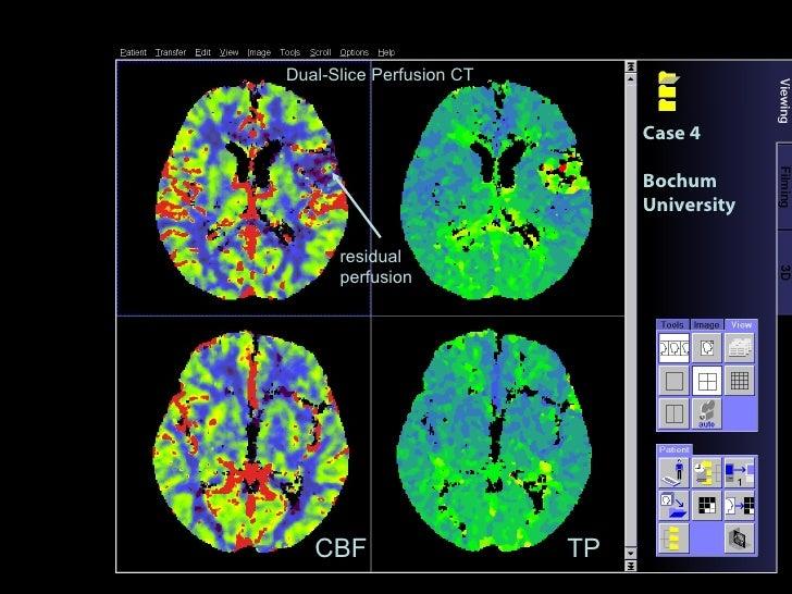 Case 4 Bochum University TP CBF residual perfusion Dual-Slice Perfusion CT