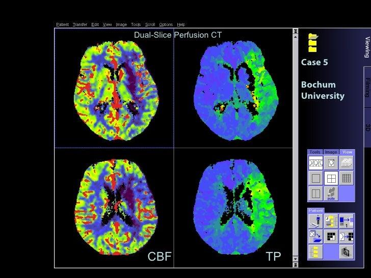 Case 5 Bochum University TP CBF Dual-Slice Perfusion CT