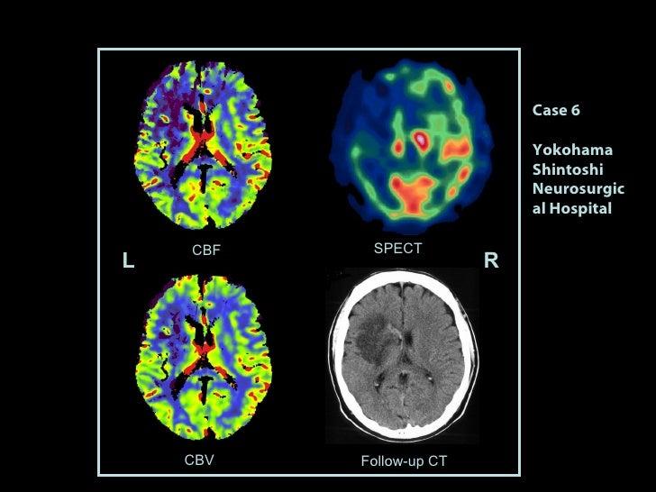 L R Follow-up CT  SPECT CBV CBF Case 6 Yokohama Shintoshi Neurosurgical Hospital