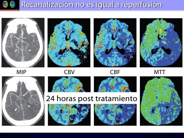 Recanalización no es igual a reperfusión MIP CBV CBF MTT 24 horas post tratamiento