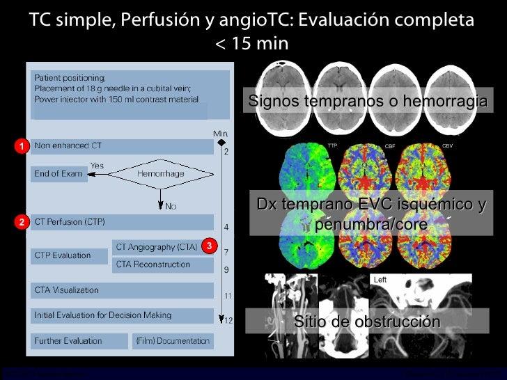 TC simple, Perfusión y angioTC: Evaluación completa < 15 min Signos tempranos o hemorragia 1 2 3 INCICh/CT Scanner del Sur...