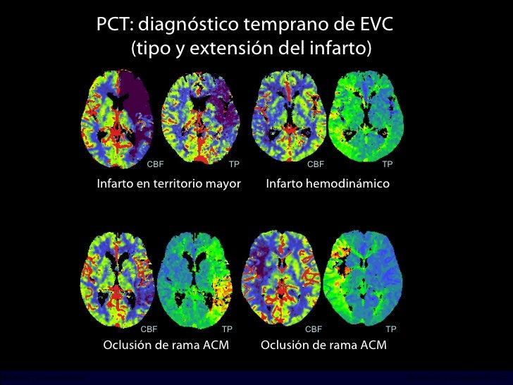<ul><li>^hj </li></ul>PCT: diagnóstico temprano de EVC  (tipo y extensión del infarto) Infarto en territorio mayor Infarto...