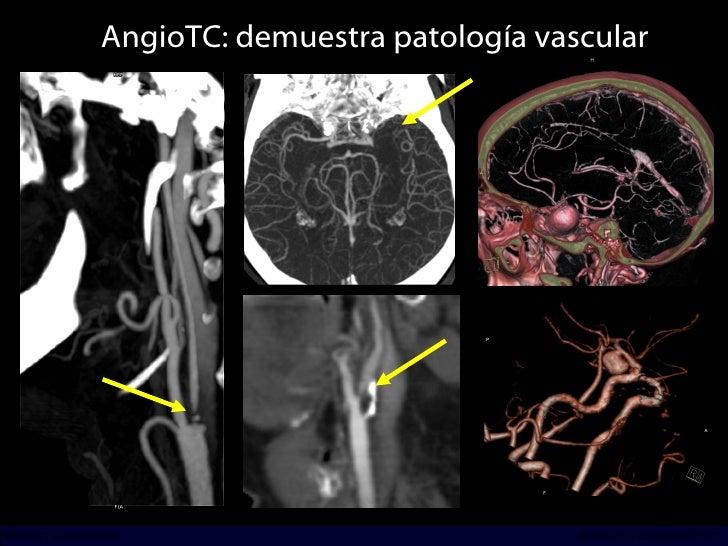 AngioTC: demuestra patología vascular INCICh/CT Scanner del Sur División TC y US/Unidad PET-CT