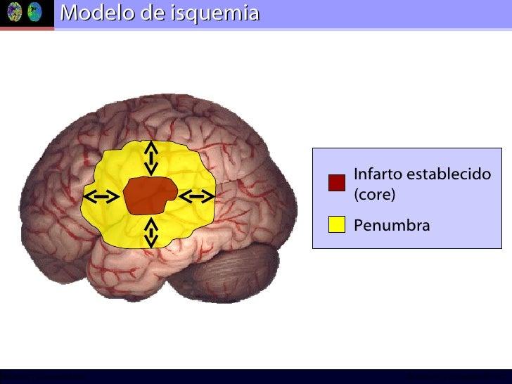 Modelo de isquemia Infarto establecido (core) Penumbra