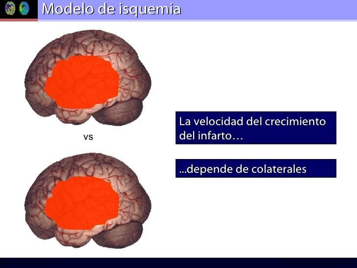 Modelo de isquemia  La velocidad del crecimiento del infarto… ...depende de colaterales vs