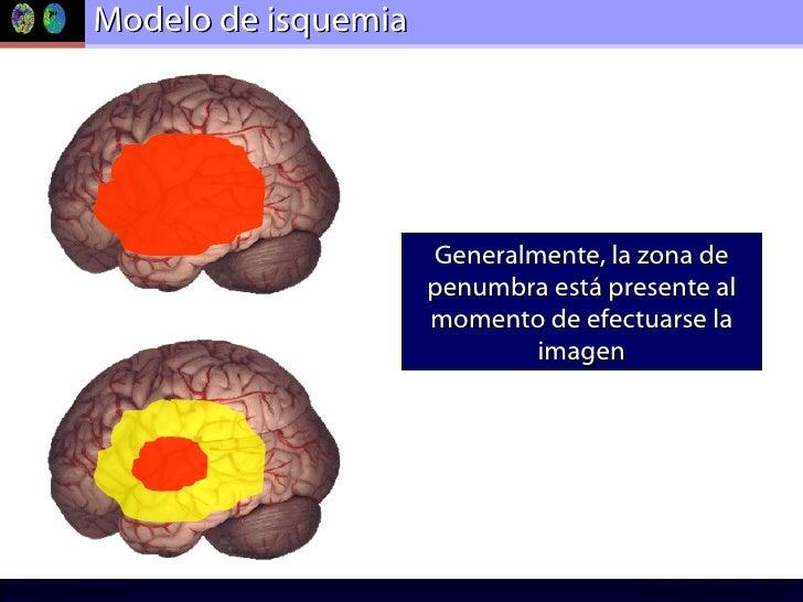 Modelo de isquemia Generalmente, la zona de penumbra está presente al momento de efectuarse la imagen