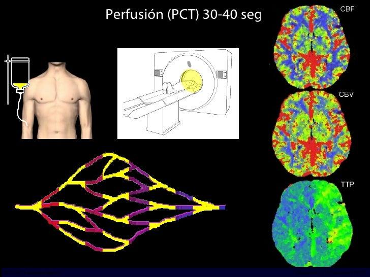 Perfusión (PCT) 30-40 seg INCICh/CT Scanner del Sur División TC y US/Unidad PET-CT