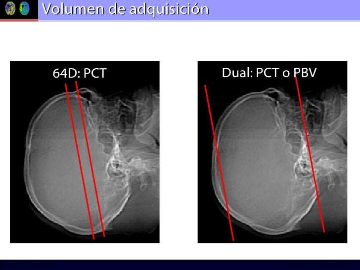 Volumen de adquisición 64D: PCT Dual: PCT o PBV
