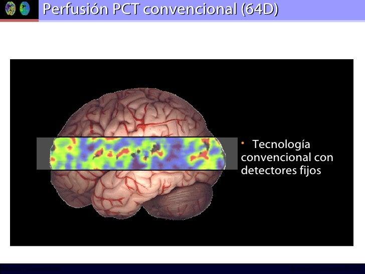 Perfusión PCT convencional (64D) <ul><li>Tecnología convencional con detectores fijos </li></ul>