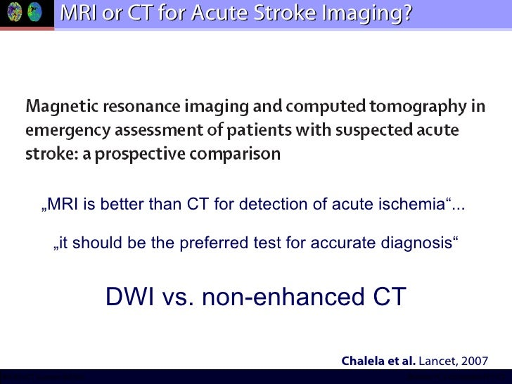 """MRI or CT for Acute Stroke Imaging? """" MRI is better than CT for detection of acute ischemia""""...  """"it should be the preferr..."""