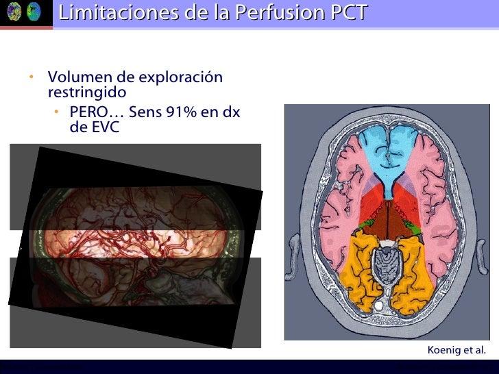 Limitaciones de la Perfusion PCT <ul><li>Volumen de exploración restringido </li></ul><ul><ul><li>PERO… Sens 91% en dx de ...