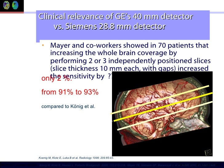 Clinical relevance of GE's 40 mm detector    vs. Siemens 28.8 mm detector <ul><li>Mayer and co-workers showed in 70 patien...