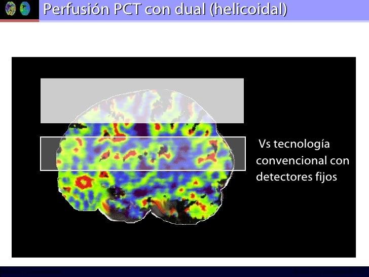 Perfusión PCT con dual (helicoidal) * <ul><li>Vs tecnología  </li></ul><ul><li>convencional con  </li></ul><ul><li>detecto...