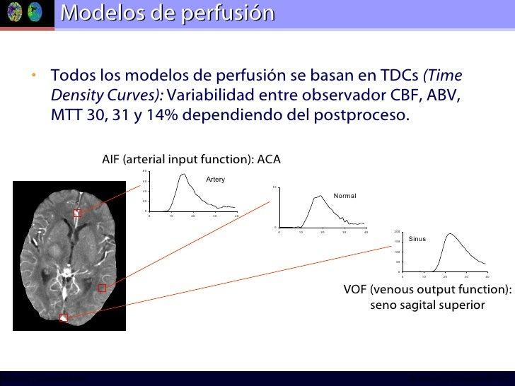 Modelos de perfusión <ul><li>Todos los modelos de perfusión se basan en TDCs  (Time Density Curves):  Variabilidad entre o...