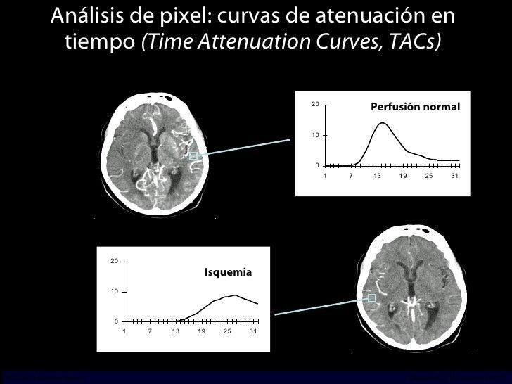 Análisis de pixel: curvas de atenuación en tiempo  (Time Attenuation Curves, TACs) Isquemia Perfusión normal Early Phase L...