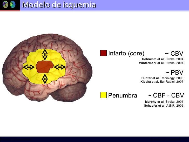 Modelo de isquemia Infarto (core) Schramm et al.  Stroke, 2004 Wintermark et al.  Stroke, 2004 Hunter et al.  Radiology, 2...