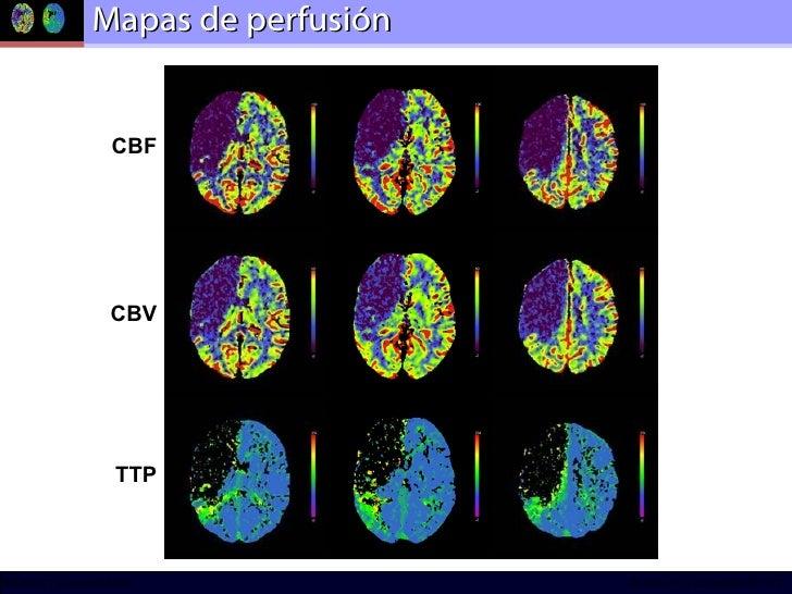 Mapas de perfusión CBF CBV TTP