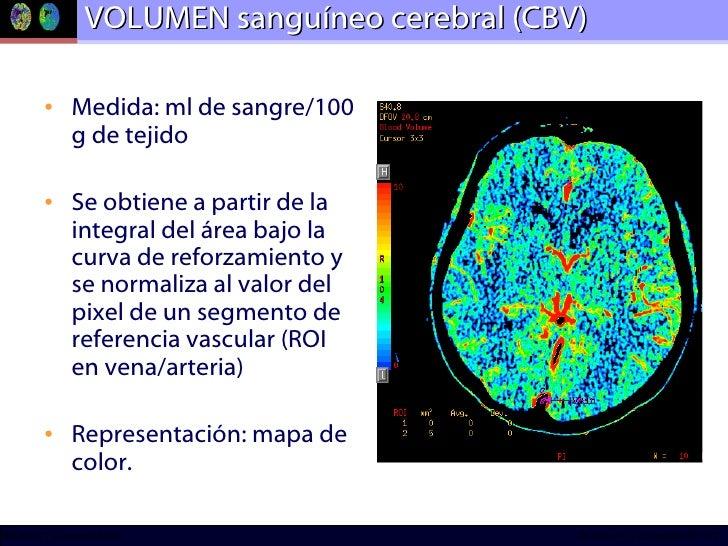 VOLUMEN sanguíneo cerebral (CBV) <ul><li>Medida: ml de sangre/100 g de tejido </li></ul><ul><li>Se obtiene a partir de la ...