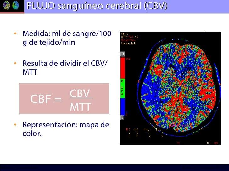 FLUJO sanguíneo cerebral (CBV) <ul><li>Medida: ml de sangre/100 g de tejido/min </li></ul><ul><li>Resulta de dividir el CB...