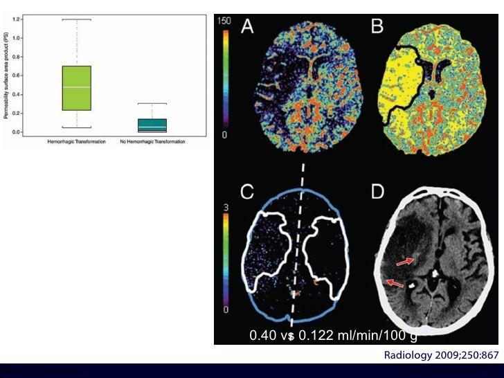 Radiology 2009;250:867 0.40 vs 0.122 ml/min/100 g INCICh/CT Scanner del Sur División TC y US/Unidad PET-CT