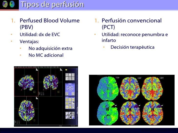 Tipos de perfusión <ul><li>Perfused Blood Volume (PBV) </li></ul><ul><li>Utilidad: dx de EVC </li></ul><ul><li>Ventajas:  ...