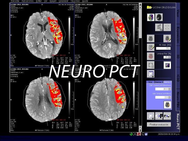 NEURO PCT INCICh/CT Scanner del Sur División TC y US/Unidad PET-CT