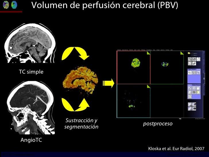 Volumen de perfusión cerebral (PBV) TC simple AngioTC Sustracción y segmentación postproceso Kloska et al. Eur Radiol, 200...
