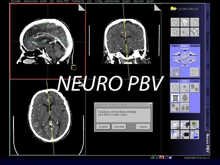 NEURO PBV INCICh/CT Scanner del Sur División TC y US/Unidad PET-CT