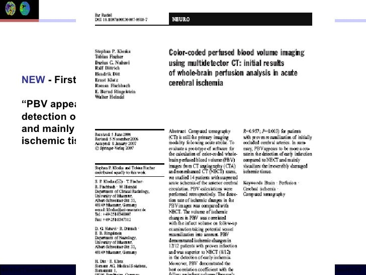 """NEW  - First clinical paper on  syngo  Neuro PBV  """" PBV appears to be more accurate in the detection of early infarction c..."""
