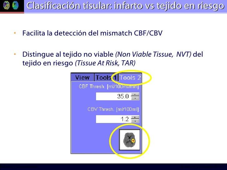 Clasificación tisular: infarto vs tejido en riesgo <ul><li>Facilita la detección del mismatch CBF/CBV </li></ul><ul><li>Di...
