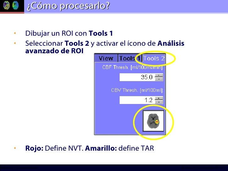 ¿Cómo procesarlo? <ul><li>Dibujar un ROI con  Tools 1 </li></ul><ul><li>Seleccionar  Tools 2  y activar el ícono de  Análi...