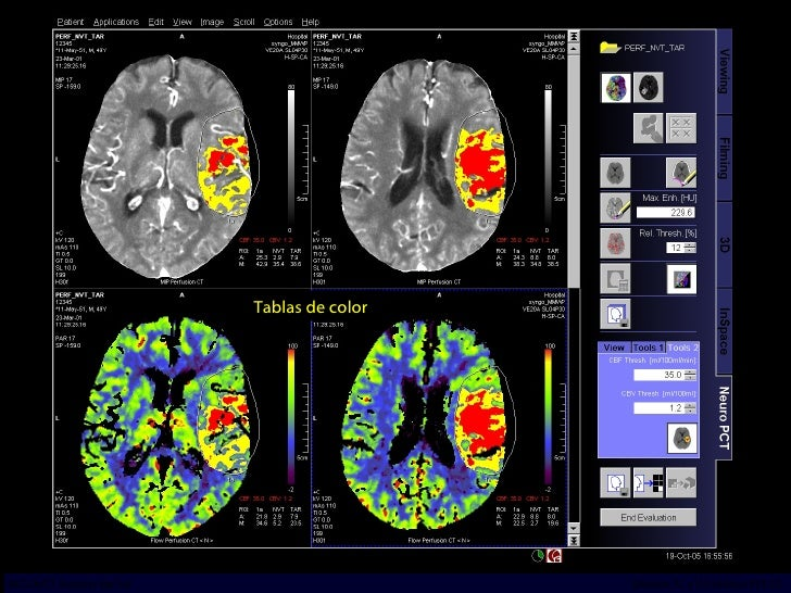 Tablas de color INCICh/CT Scanner del Sur División TC y US/Unidad PET-CT