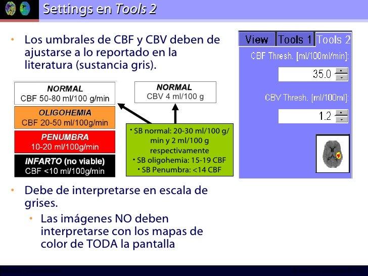 Settings en  Tools 2 <ul><li>Los umbrales de CBF y CBV deben de ajustarse a lo reportado en la literatura (sustancia gris)...