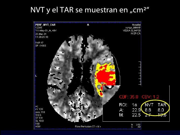 """NVT y el TAR se muestran en """"cm²"""" INCICh/CT Scanner del Sur División TC y US/Unidad PET-CT"""