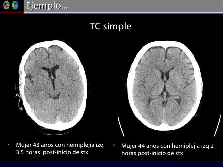 Ejemplo... <ul><li>Mujer 43 años con hemiplejia izq 3.5 horas  post-inicio de stx </li></ul>TC simple <ul><li>Mujer 44 año...