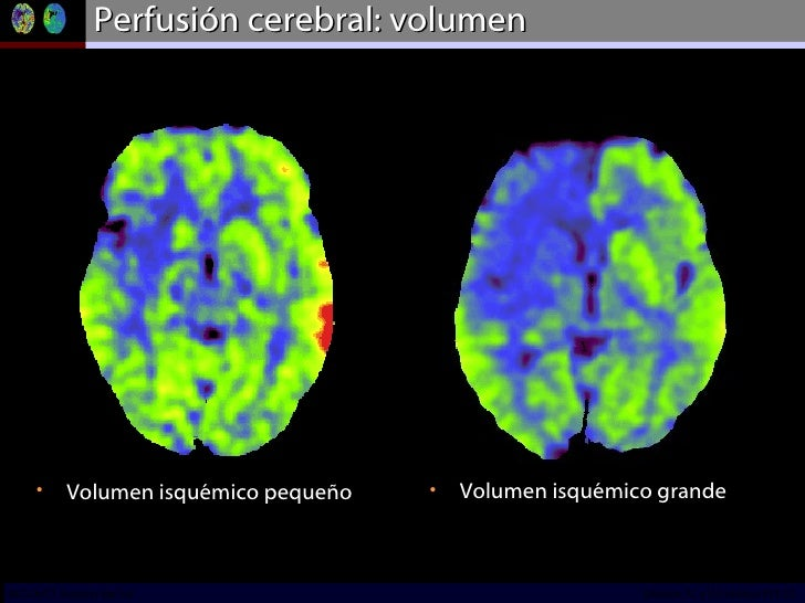 Perfusión cerebral: volumen <ul><li>Volumen isquémico grande </li></ul><ul><li>Volumen isquémico pequeño  </li></ul>INCICh...