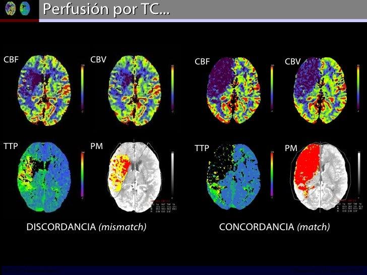 Perfusión por TC... DISCORDANCIA  (mismatch) CONCORDANCIA  (match) CBF TTP CBV PM CBF TTP CBV PM INCICh/CT Scanner del Sur...