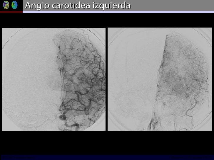 Angio carotídea izquierda INCICh/CT Scanner del Sur División TC y US/Unidad PET-CT