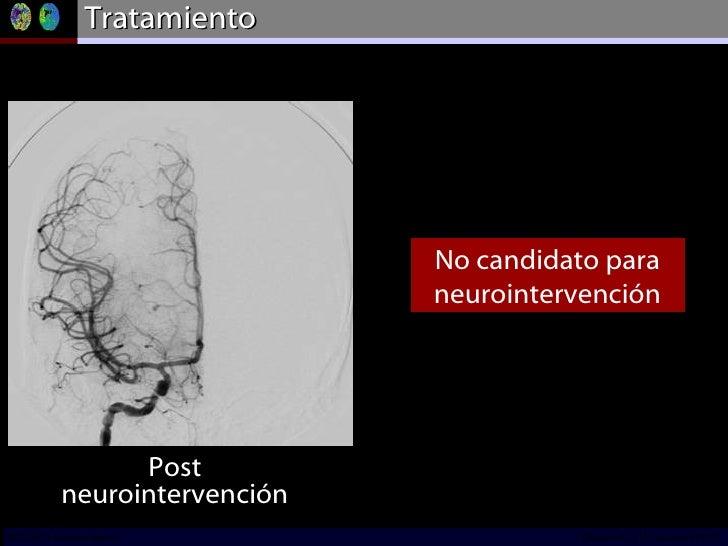 Tratamiento DSA – right CCA No candidato para neurointervención Post neurointervención INCICh/CT Scanner del Sur División ...
