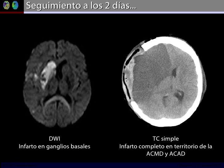 Seguimiento a los 2 días... DWI Infarto en ganglios basales TC simple Infarto completo en territorio de la ACMD y ACAD INC...