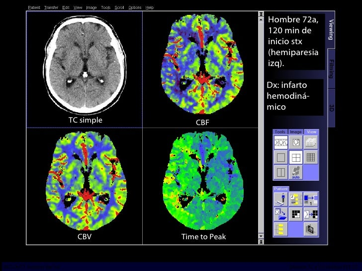 TC simple Hombre 72a, 120 min de inicio stx (hemiparesia izq). Dx: infarto hemodiná-mico Time to Peak CBF CBV INCICh/CT Sc...